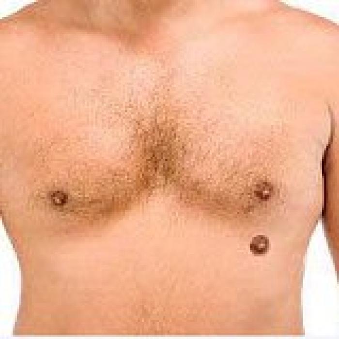 F7s-chest-third-nipple.jpg